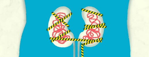 Signs and Symptoms of Kidney Issues image