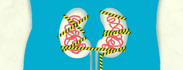 Two kidneys covered with caution tape